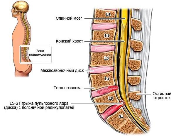 Парамедианная грыжа диска l5 s1 - что это такое и как лечить