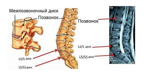 В основном в поясничном отделе позвоночника грыжа развивается в сегменте L4-L5 и L5-S1