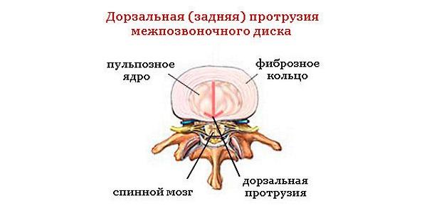 Дорзальная грыжа - выпячивание диска произошло назад в направлении спинного мозга