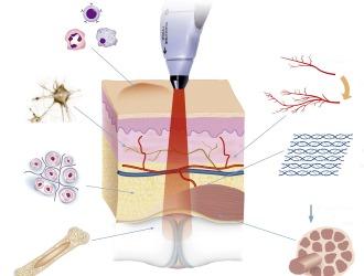 Особое значение в лечении грыжи позвоночника занимают физиопроцедуры