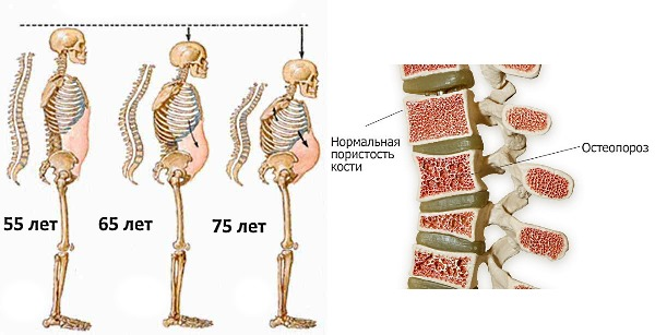 Женщины больше подвержены развитию остеопороза, чем мужчины