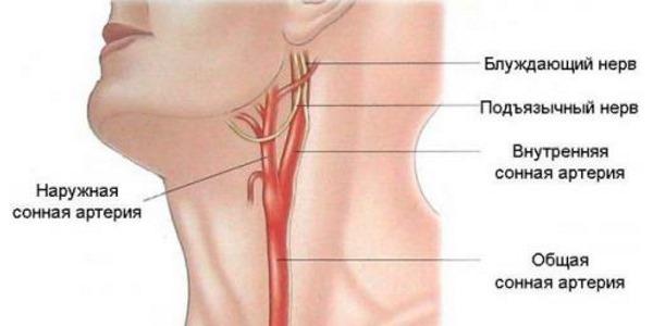 Еще одной причиной болевого синдрома в шее спереди является атеросклероз шейных сосудов
