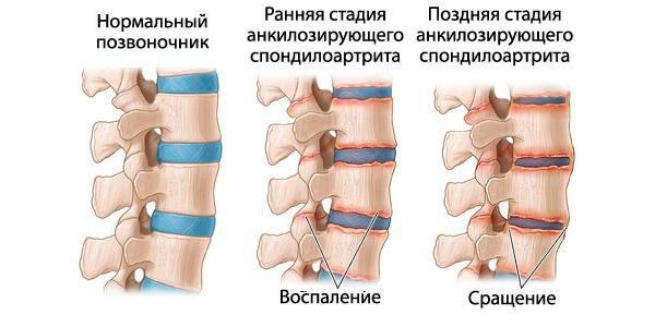 Болезнь Бехтерева - сращивание позвонков в следствии воспаления