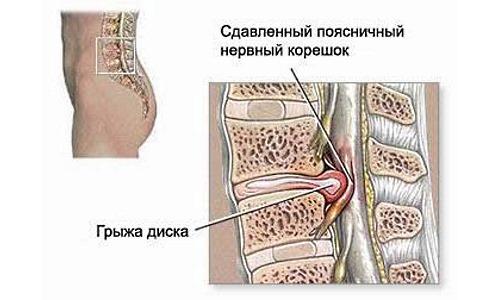 Плавать запрещено в острой фазе межпозвонковой грыжи диска