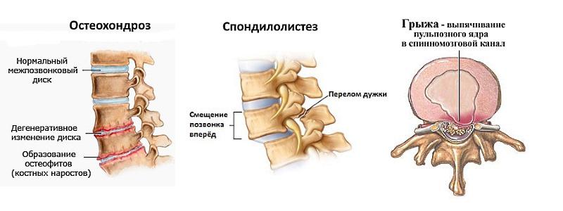 Заболевания позвоночника, при которых чаще всего появляется боль в спине