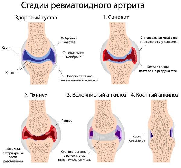 Нарушения в функционировании суставов может вызвать обычный ревматоидный артрит