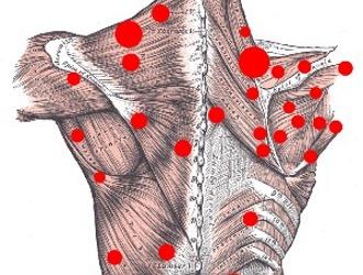 Триггерные точки спины
