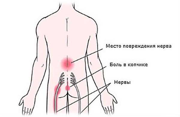 Чаще всего при радикулите пациент испытывает боль в области поясницы