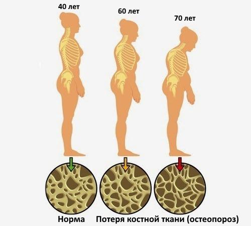 У женщин остеопороз развивается чаще всего в связи с возрастными изменениями и климаксом