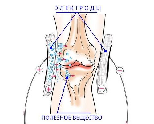 При терапии электрофорезом лечение дополняют специальным лекарством, которое доставляется в пораженные ткани с помощью прибора