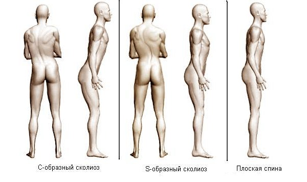 Массирование спины часто применяют как один из основных методов лечения искривлений позвоночника