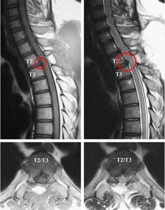Самой эффективной для диагностики протрузий является МР томография