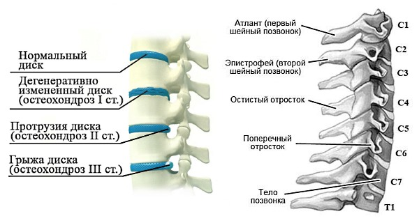 Симптоматика остеохондроза в шейном отделе более выражена, чем при заболевании в других отделах