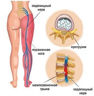 Люмбоишиалгия характеризуется острой болью и прострелами в области поясницы с иррадиацией в ногу