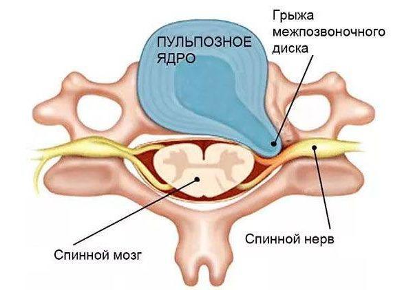 Чаще всего грыжа межпозвонкового диска возникает в задней боковой проекции