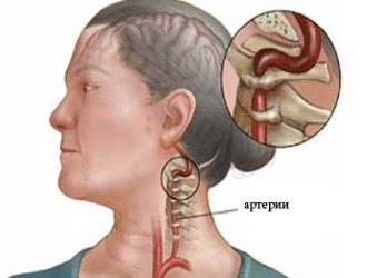 Все симптомы дегенеративных изменений в шейном отделе возникают из-за нарушения кровоснабжения мозга
