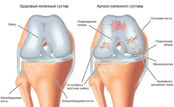 Основным показанием к применению является артроз и остеохондроз