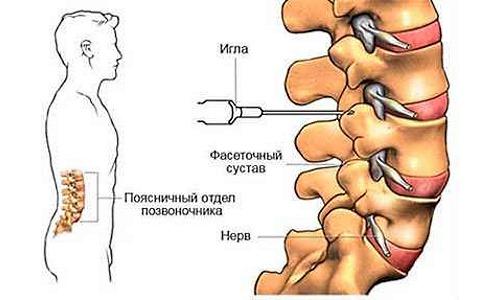 При необходимости быстрого реагирования и устранения острой боли применяют блокады