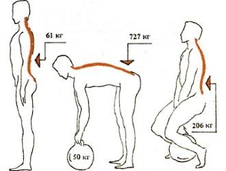 Повышенные нагрузки - основная причина развития межпозвоночной грыжи