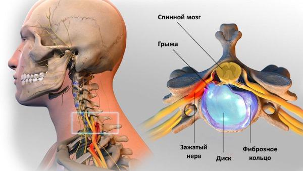 Ниже можно ознакомиться с симптомами грыжи шейного отдела позвоночника
