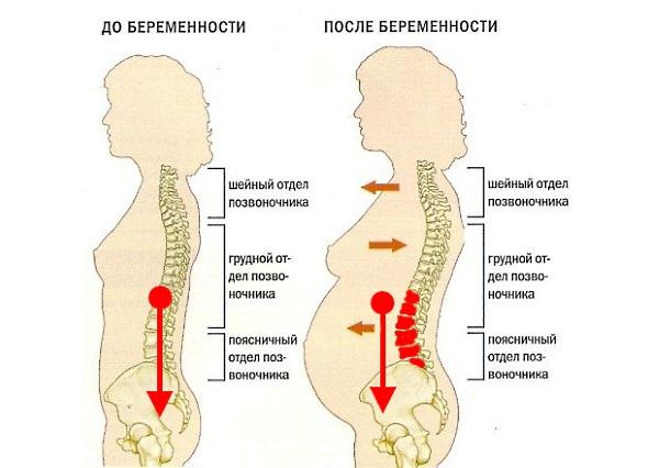 упражнения при боли в спине при беременности