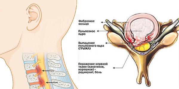 Разрыв фиброзного кольца происходит из-за истончения диска и постоянного давления