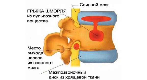 При грыже Шморля межпозвоночный диск вдавливается в тело позвонка