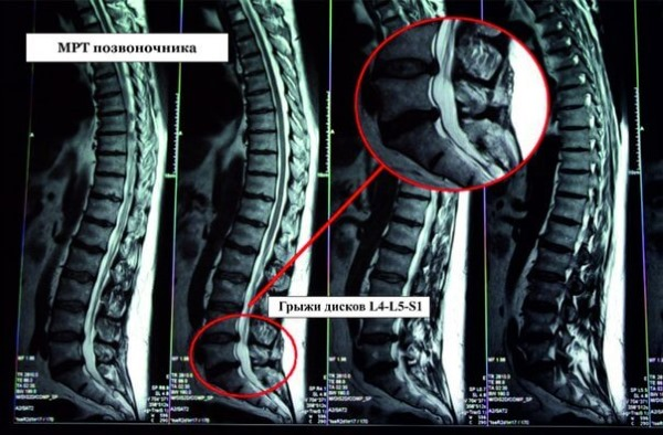 Межпозвоночные грыжи хорошо рассматриваются на МРТ