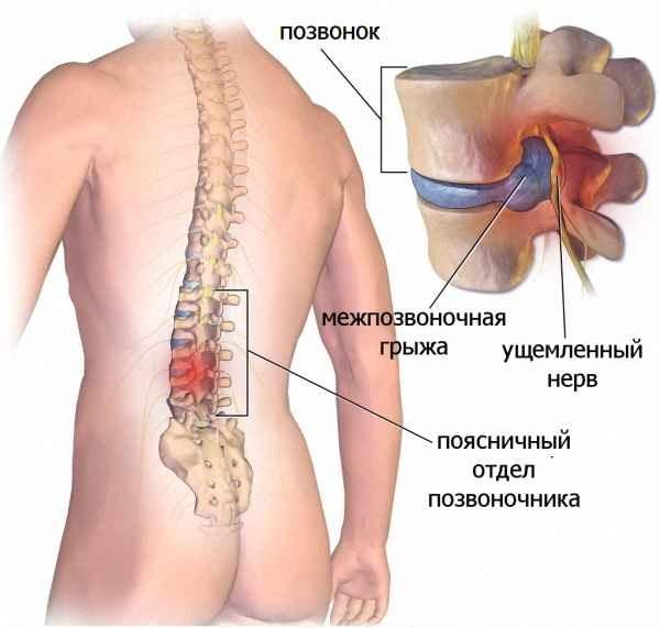 При грыже, как правило ущемляются нервные корешки позвоночника