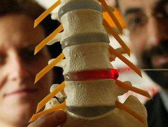 Обратите внимание на методы лечения грыжи позвоночника в шейном отделе