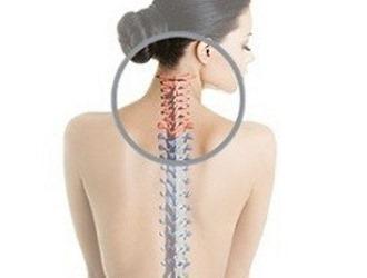 Лечение хондроза спины в домашних условиях