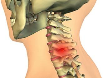 Хондроз шейного отдела на первой стадии имеет слабовыраженную симптоматику, иногда протекает бессимптомно
