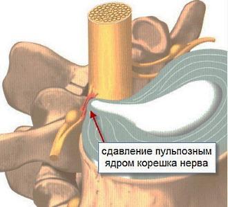 Причиной острого радикулита выступает разрастание фиброзной ткани и различные новообразования