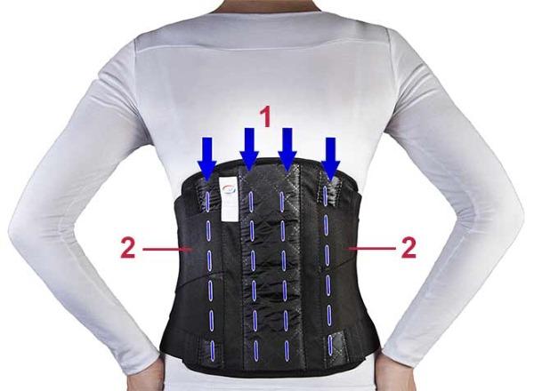 Ортопедический корсет имеет специальные ребра жесткости, которые поддерживают спину больного (1,2)