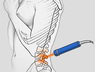 Для лечения грыжи позвоночника лазером используют инфракрасное излучение