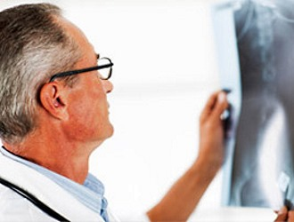 До сих пор не установлена истинная причина грудного остеохондроза