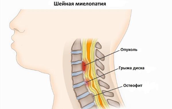 Миелопатия - одно из последствий остеохондроза