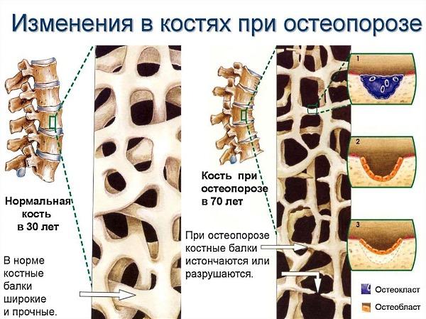Анализ крови на остеопороз как называется