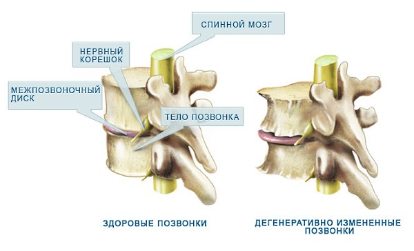 Дегенеративные изменения в позвоночнике являются наиболее частыми причинами появления болей в шее