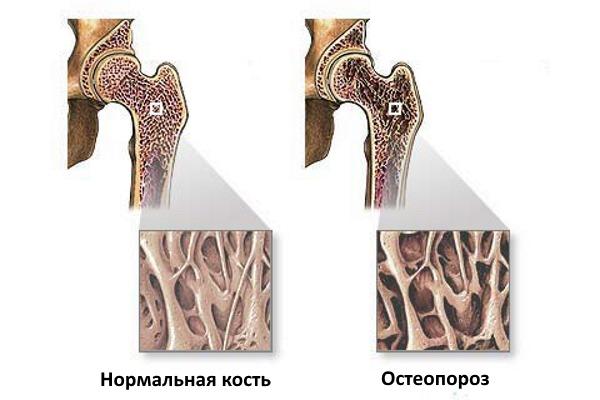 Почему возникает остеопороз костей у ребнка и как его вылечить