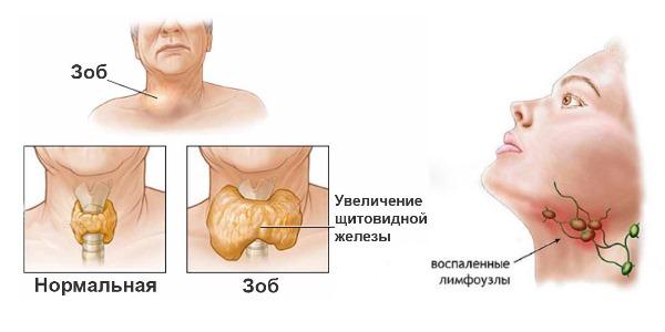 Иногда шея начинает болеть из-за воспалительных процессов