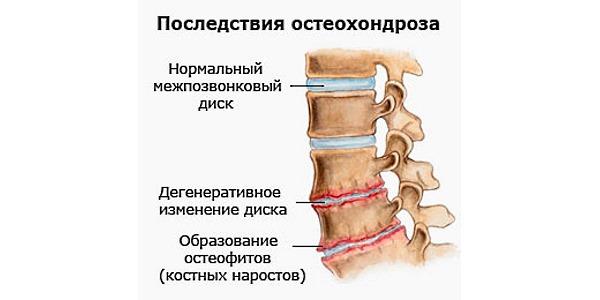 Остеохондроз характеризуется стиранием межпозвоночных дисков