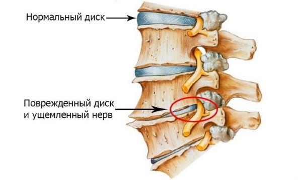 Радикулит - это сдавливание корешка нерва, вызванного другими заболеваниями позвоночника