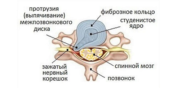 Протрузия диска - смещение пульпозного ядра диска в сторону спинномозгового канала