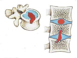 Если не лечить грыжу Шморля, то постепенно патология перерастает в межпозвоночною