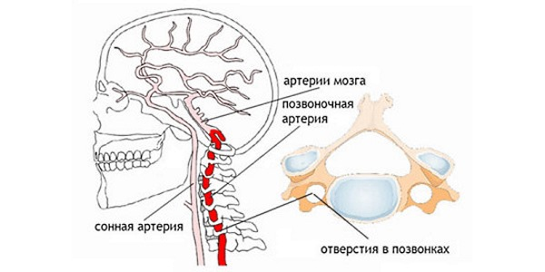 Шум в ушах при остеохондрозе возникает из-за передавливания позвоночной артерии