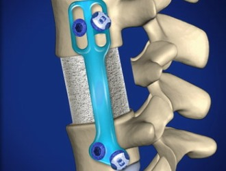 Ортопедический метод лечение спондилолистеза подразумевает скрепление позвонков пластиной