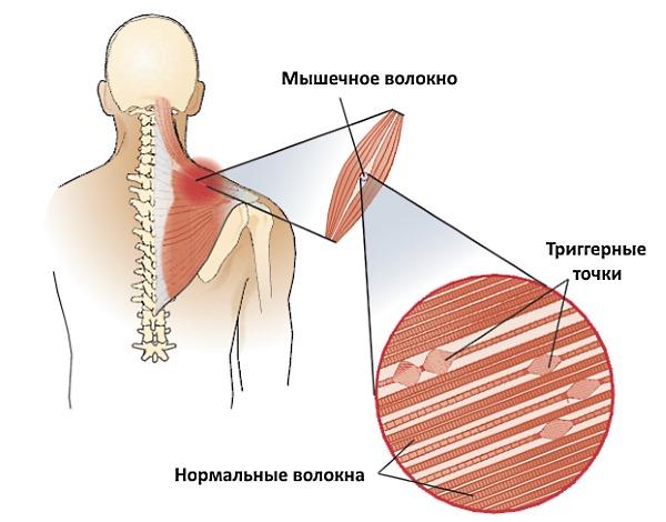 Триггерные точки появляются в любых мышцах спины