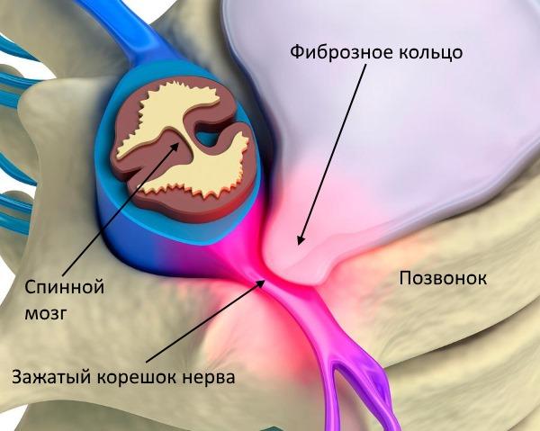 Воспаление нервного корешка вызывает боль при радикулите