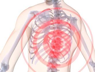 Хондроз грудного отдела